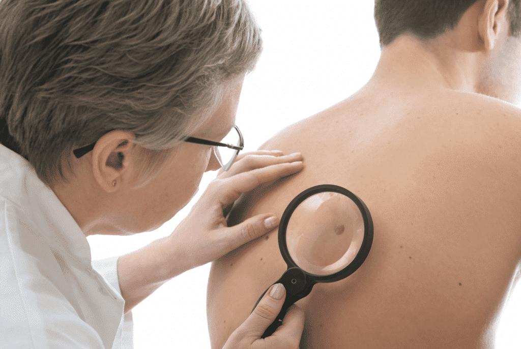 dermatoloog tienerjongens verzorgingstips