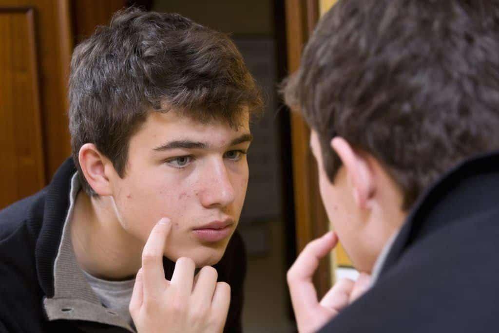 Behandeling acne tienerjongens